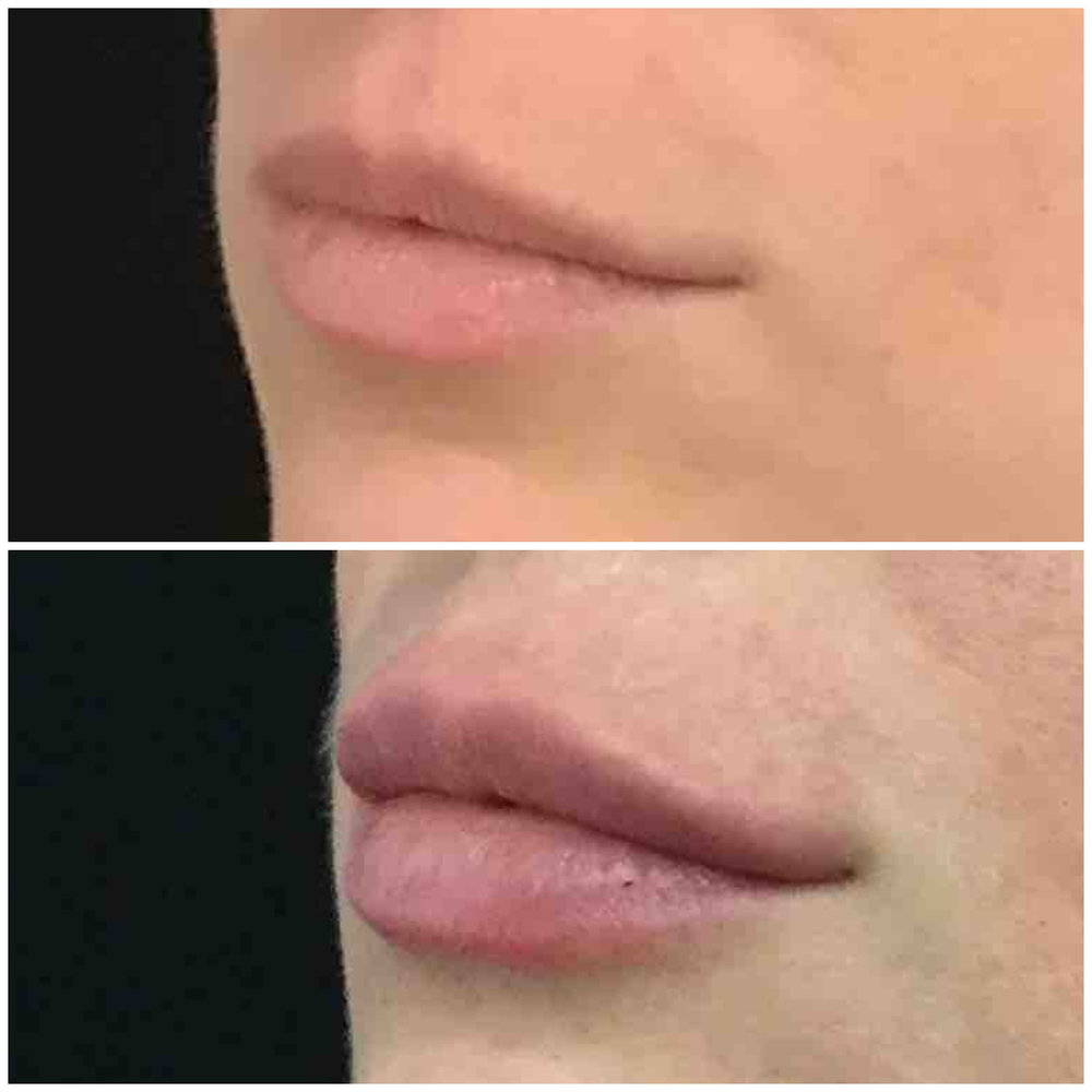 lip_augmentation_ba_83.jpg