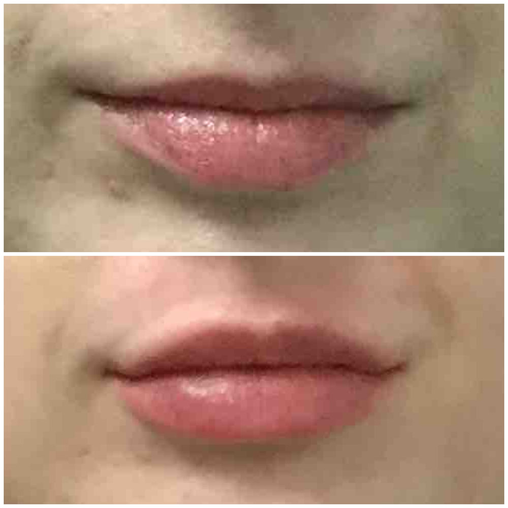 Juvederm Lip Injections San Francisco