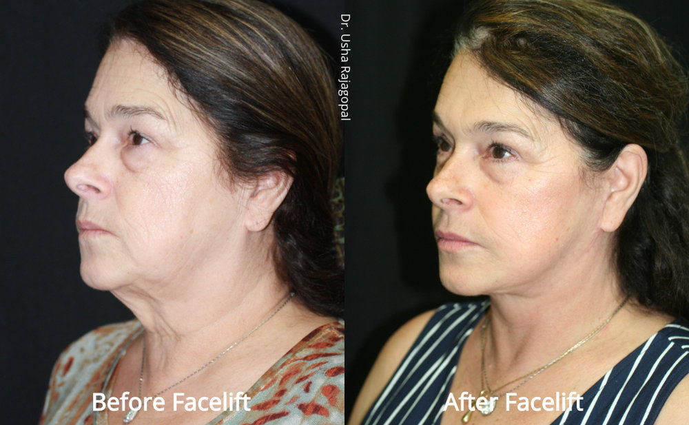 facelift_beforeafter_24.jpg