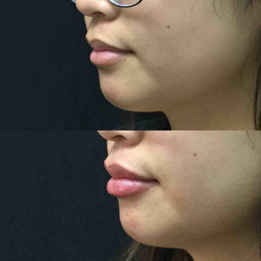 lip_augmentation_ba_86.jpg
