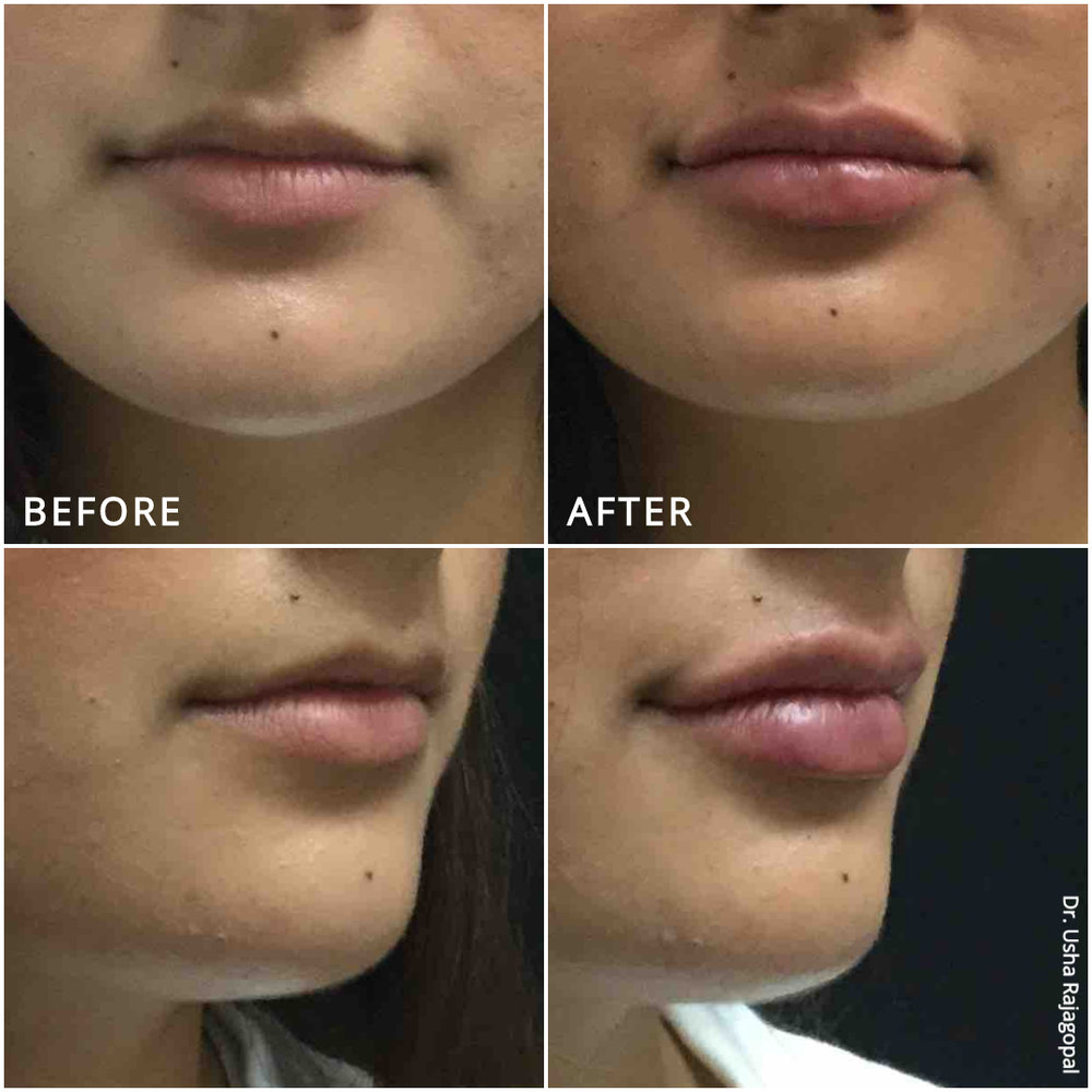 lip_augmentation_ba_94.jpg