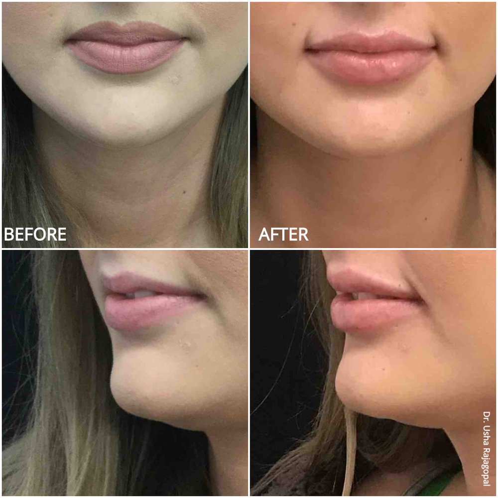 lip_augmentation_ba_97.jpg