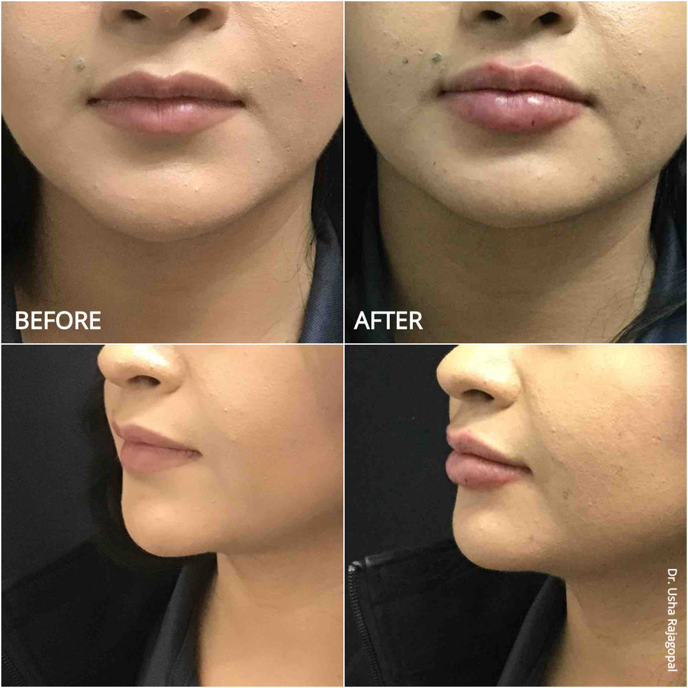 lip_augmentation_ba_99.jpg