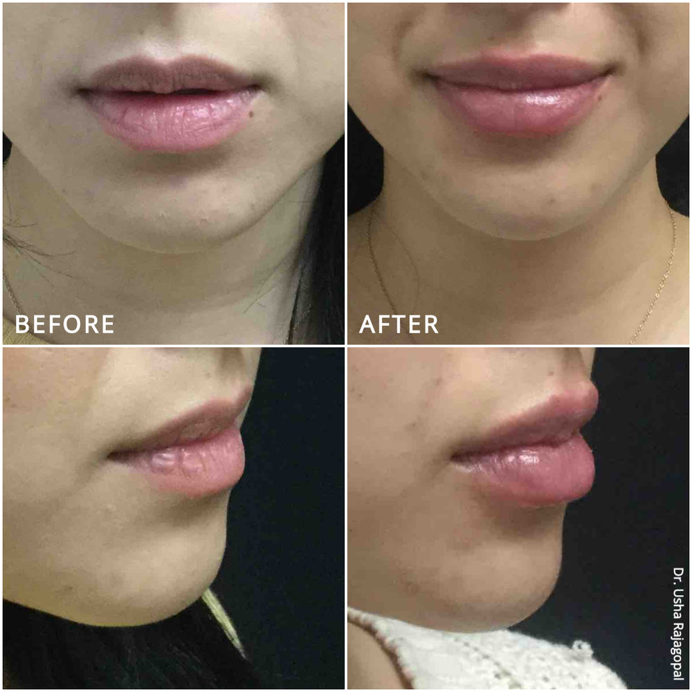 lip_augmentation_ba_95.jpg