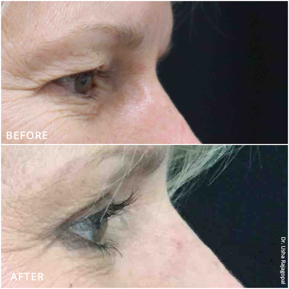 eyelid surgery_ba_4.jpg