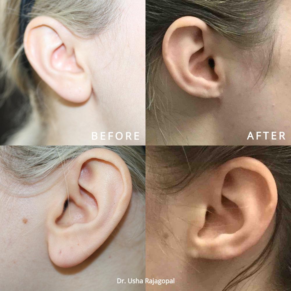 earlobe reduction_ba_1.jpg