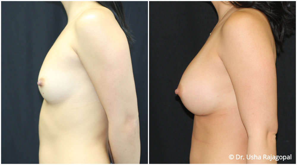 breast-aug-web-6.jpg