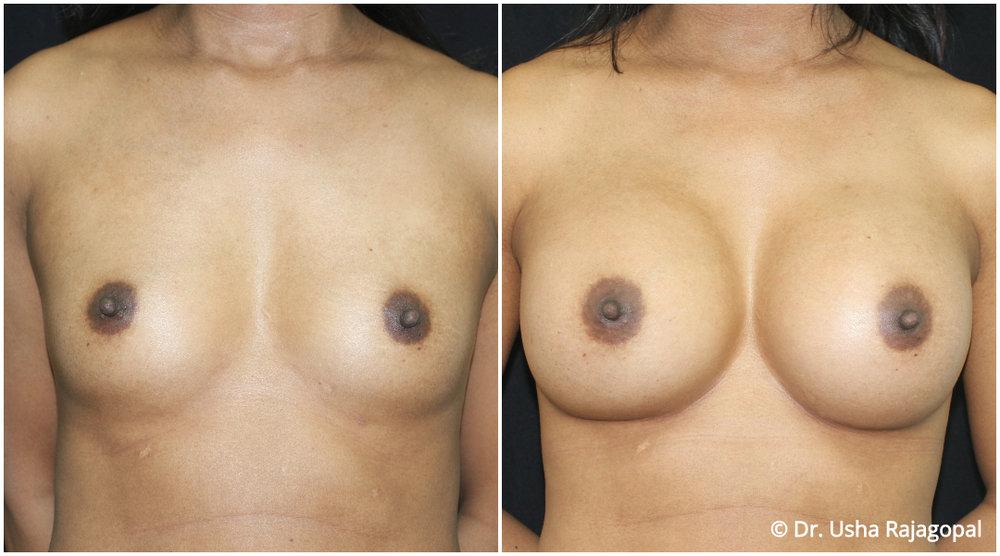 breast-aug-web-13.jpg