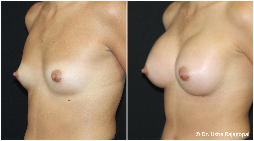 breast-aug-web-16.jpg