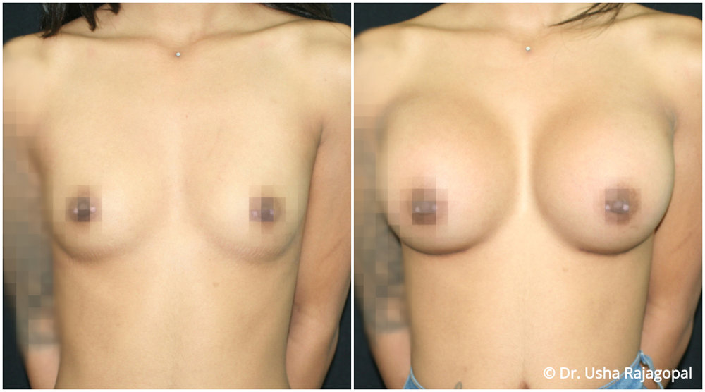 breast-aug-web-1.jpg