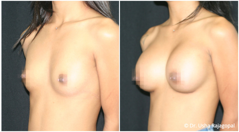 breast-aug-web-2.jpg