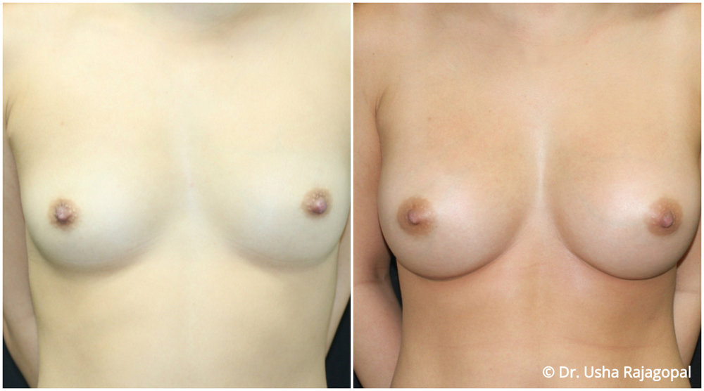 breast-aug-web-4.jpg