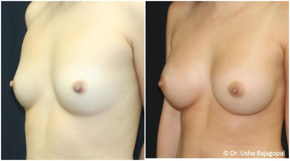 breast-aug-web-5.jpg