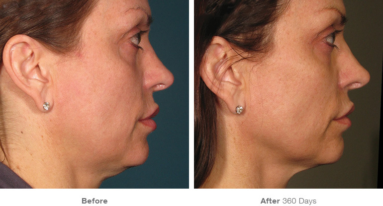 before_after_ultherapy_results_full-face3.jpg