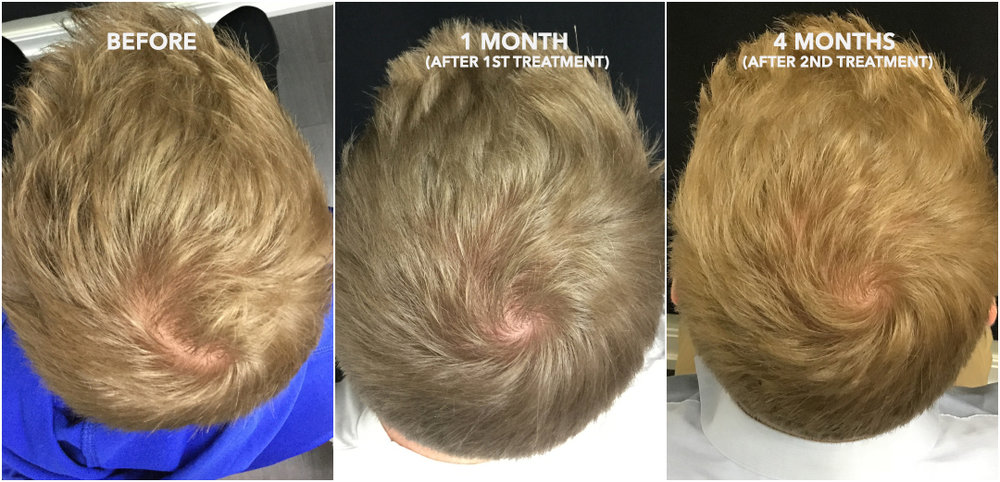 Hair Regrowth Therapy With Acell Prp San Francisco Bay Area