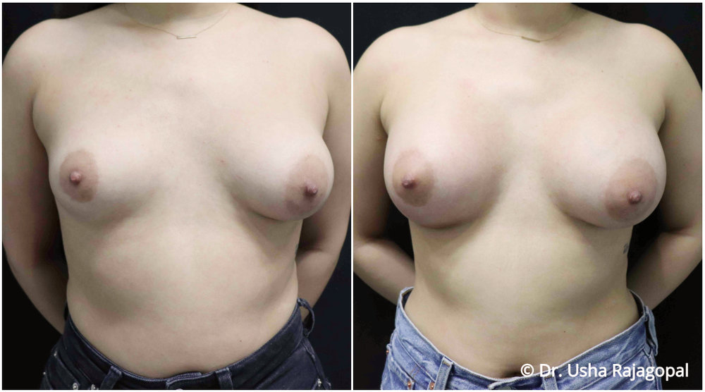 breast-aug-web-21.jpg