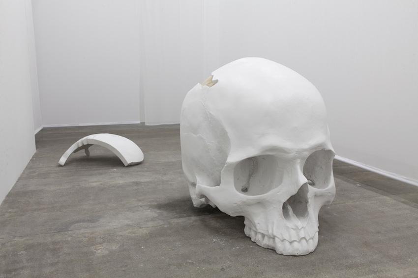 Neurologie, 2016, résine, plâtre, lasse, crâne: 210 x 148 x 95 cm, USA: 64 x 95 x 35 cm  Avec la participation du Centre National des Arts Plastiques