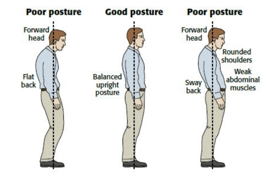 What good and bad posture looks like.