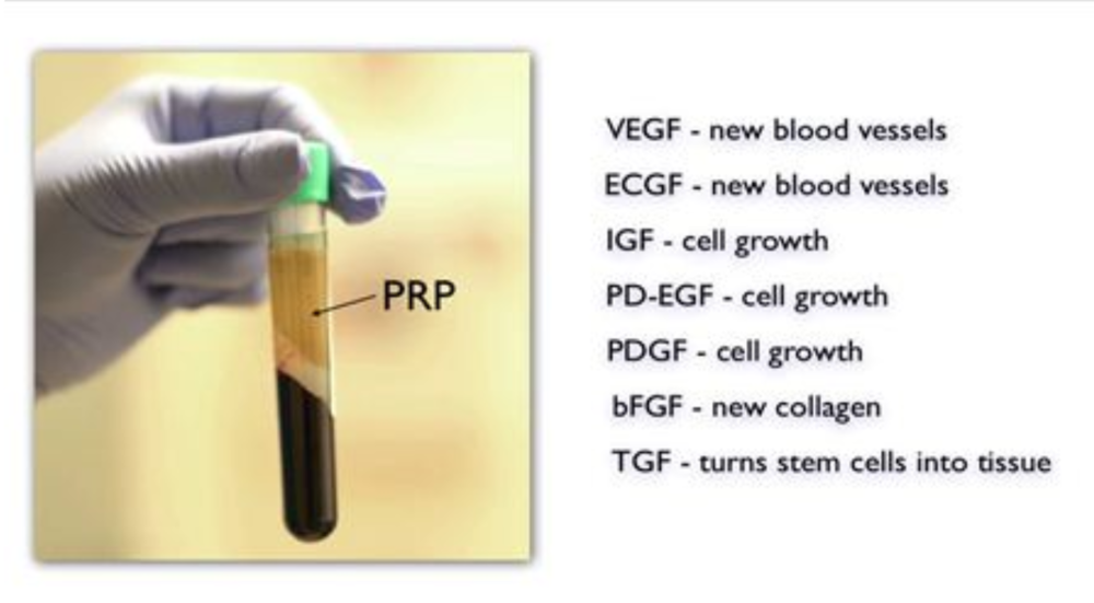 PRP GROWTH FACTORS
