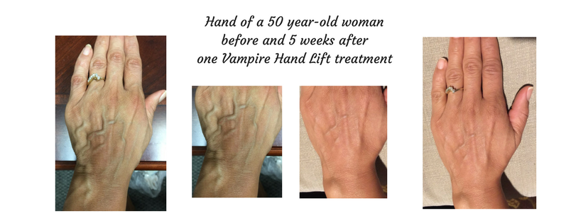 50 yo woman before and 5 weeks after vampire Hand Lift.png