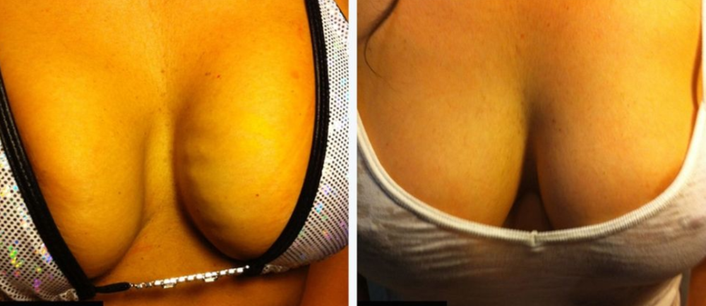 Photo Credit: Dr. Charles Runels, creator of the Vampire Breast Lift