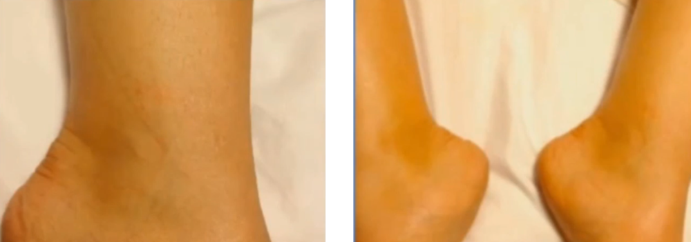 Healed Ankle - Following PRP injection Series                                                 Photo Credit: Dr. Charles Runels