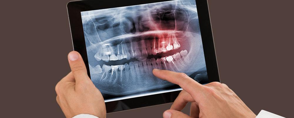 X-Ray.jpg