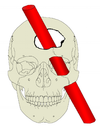 Frontallappen Phineas Gage.png
