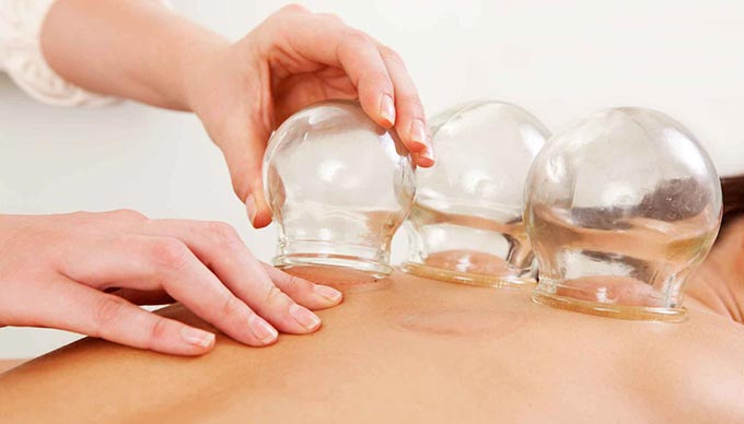Orthocore PT in Rhode Island features cupping for lessening the pain of injuries and increasing blood flow to injured areas.