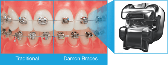 Different between bracket technology, traditional brackets and Damon braces