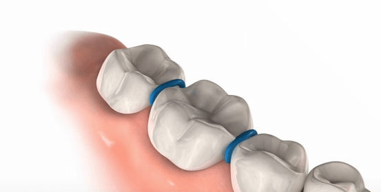 Example of spacers between teeth before putting on braces