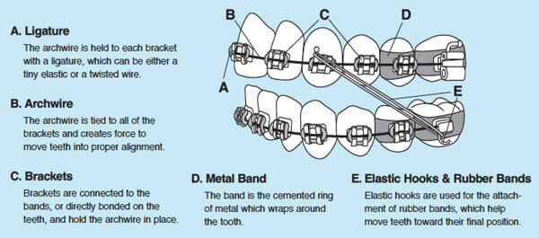 Ligature, Archwire, Brackets, Metal Bands, Elastics Hooks and Rubber Bands Definition and Explanation