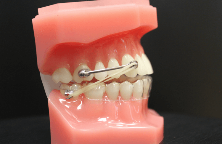 Picture from Moore Ortho showing the carierre motion appliance in an example mouth showing how tooth and jaw movements take place.