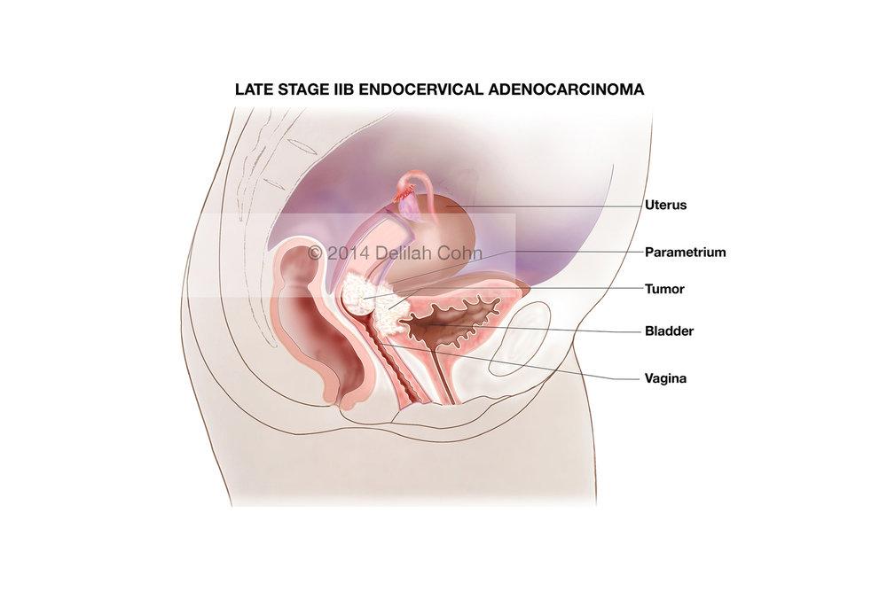Endocervical Adenocarcinoma