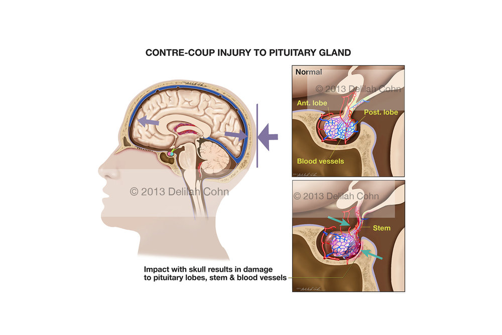 Contre-Coup Injury to Pituitary Gland
