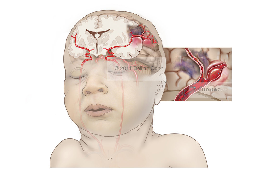 Fetal Brain Injury from Bacterial Infection