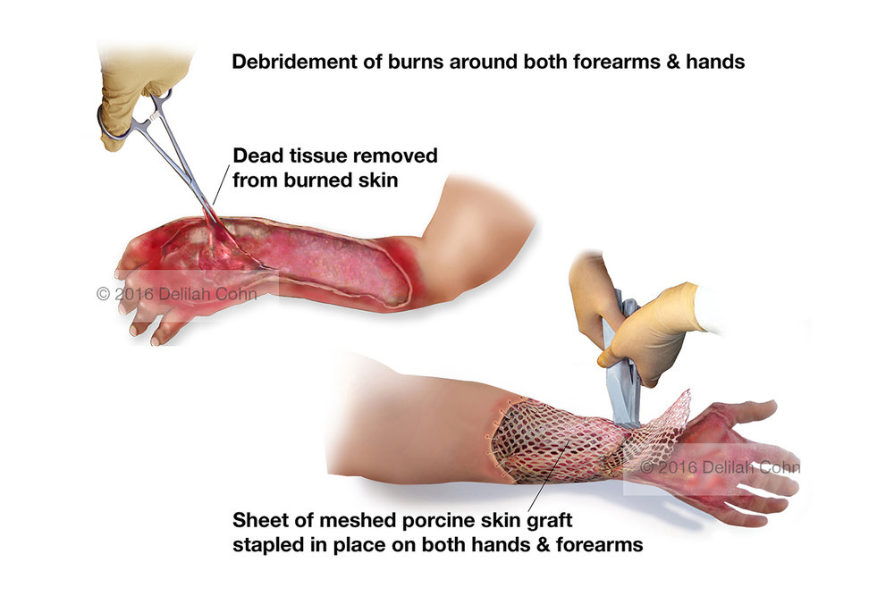 Burns: Debridement and Skin Grafts