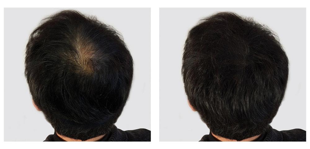 Traitement de la calvitie par tricopigmentation, Avant/Aprés , Hossegor (Landes)