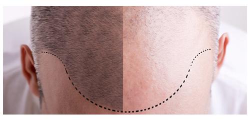 Traitement de la calvitie par tricopigmentation -Effet Rasé
