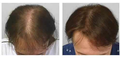 Traitement d'une perte de densité féminine par tricopigmentation