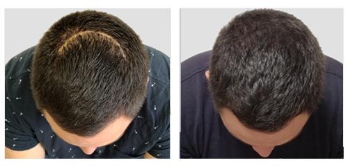 Traitement d'une cicatrice par tricopigmentation
