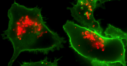 A microglial cell (green) has internalized Alzheimer's amyloid protein (red)