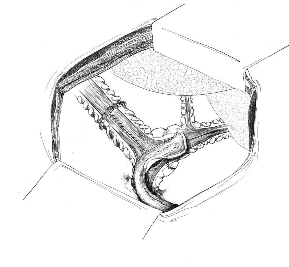 trachea-repair-3b-final.jpg