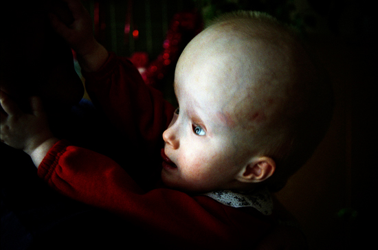 Hydrocephalic child, Minsk orphanage. Belarus, 2003 (in memoriam)