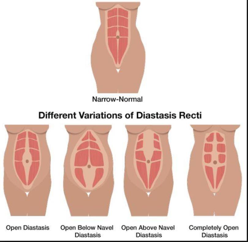 Diastasis Recti Variations