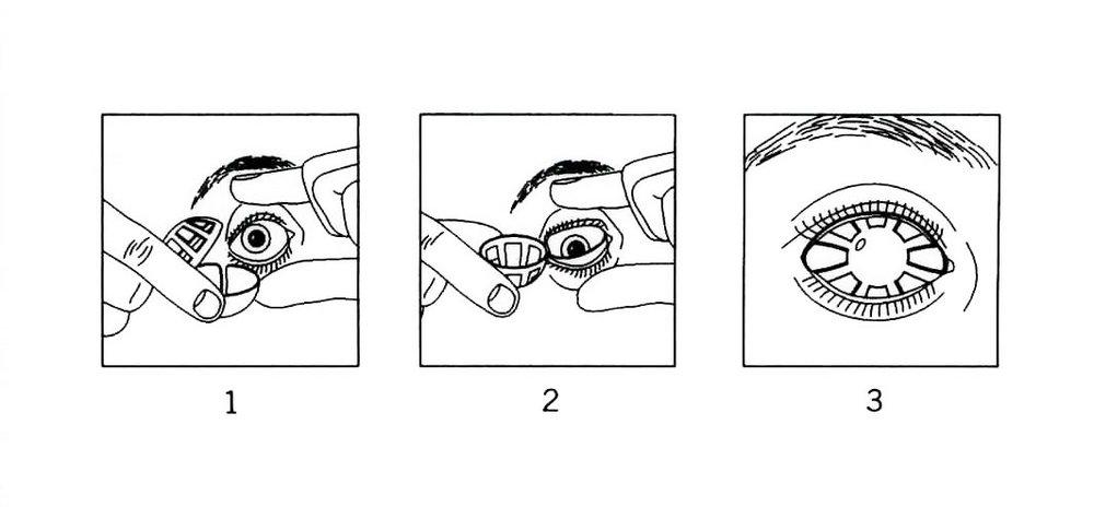 Vision Obstructors Manual