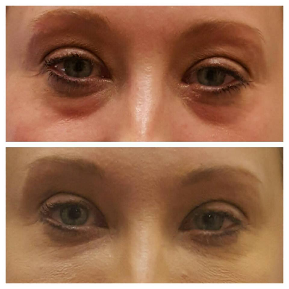 Tear trough correction with Juvederm