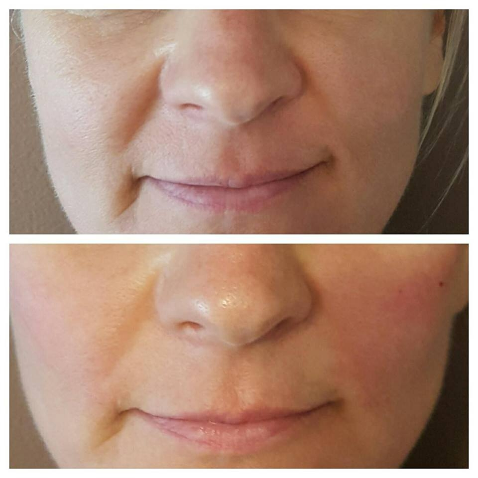 Cheek enhancement and nasolabial fold reduction immediately post injection with Juvederm.
