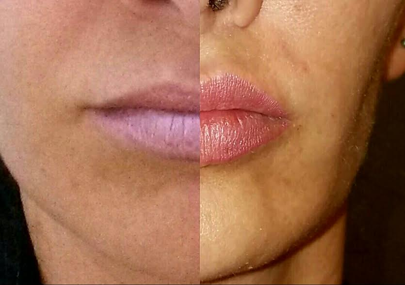Lip enhancement with Juvederm Ultra Plus
