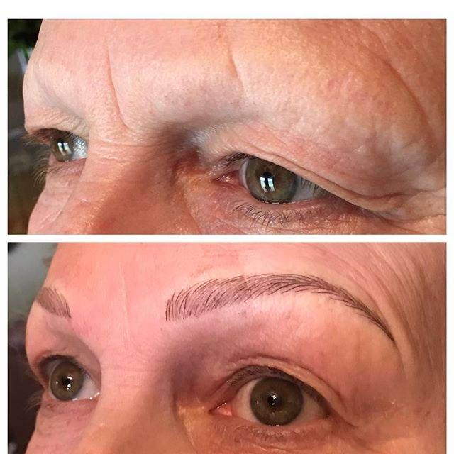 Lots of my clients come in thinking you have to have existing hair to be a good candidate for microblading.  Not true!  These will heal to a softer look, then we'll at a little more density and possible some powdery shading at her touchup to really bring them to life!
